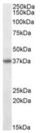 AP09607PU-N - CD95 / FAS