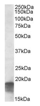AP09605PU-N - SDHAF1