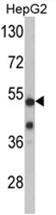 AP17632PU-N - PFTK1 / CDK14