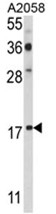 AP17630PU-N - PDRG1