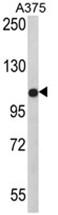 AP17619PU-N - TECPR1 / PALA
