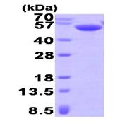 AR09401PU-L - Calsequestrin-2