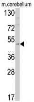 AP17303PU-N - Endothelin B receptor