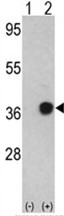AP17598PU-N - Nucleophosmin