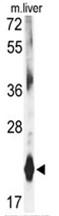 AP17565PU-N - DHFR / DHFRP1