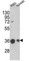 AP17557PU-N - MDH2