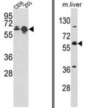 AP17553PU-N - MCCC2