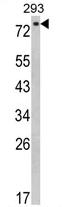 AP17341PU-N - EPS8L3
