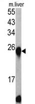 AP17351PU-N - ETHE1 / HSCO