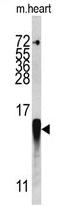 AP17354PU-N - FABP3