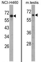 AP17360PU-N - Fascin-3