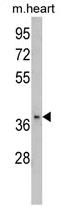 AP17363PU-N - FBP2