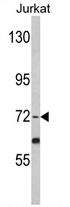 AP17364PU-N - Fibrinogen alpha chain