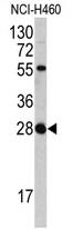 AP17367PU-N - FGF18