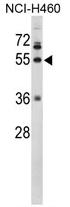 AP17375PU-N - Fibrinogen gamma chain