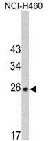 AP17379PU-N - FKBP14 / FKBP22