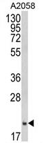 AP17403PU-N - Ferritin heavy chain (FTH1)