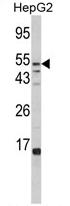 AP17405PU-N - Alpha-L-fucosidase 1 / FUCA1