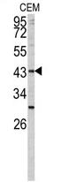 AP17406PU-N - Fucosyltransferase 1