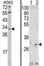 AP17512PU-N - ITM2A