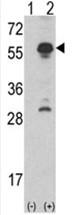 AP17507PU-N - Inhibin alpha / INHA