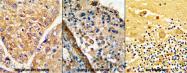 AP17415PU-N - LRRC32 / GARP