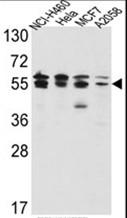 AP17504PU-N - IMPDH2