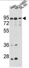 AP17502PU-N - Mitofilin