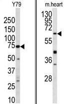 AP17421PU-N - GGT5 / GGTLA1
