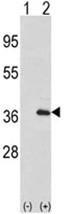 AP17498PU-N - Interleukin-1 alpha / IL-1A