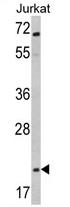 AP17427PU-N - Glucagon