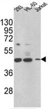 AP17485PU-N - 17-beta HSD7 / HSD17B7