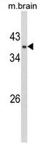 AP17436PU-N - GPD1
