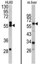 AP17473PU-N - HMG-CoA synthase / HMGCS