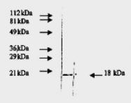 AM09155PU-N - FGF basic / FGF2