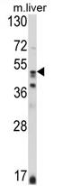 AP17441PU-N - Glutathione synthetase