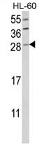 AP17448PU-N - Granzyme B (GZMB)
