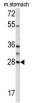 AP17449PU-N - Granzyme B (GZMB)