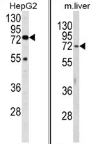 AP17459PU-N - Beta-hexosaminidase alpha / HEXA