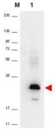 AP09194PU-N - MIP3 alpha / CCL20