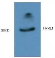 AM09317PU-N - FPR2 / FPRL1