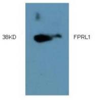 AM09318PU-N - FPR2 / FPRL1