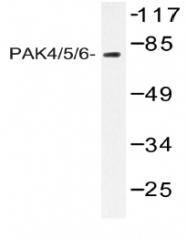 AP01447PU-N - PAK4/PAK5/PAK6