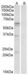 AP09610PU-N - CD98LC / SLCA5