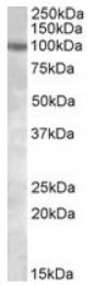 AP09623PU-N - PKD2