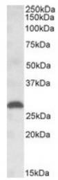 AP09626PU-N - Placenta growth factor / PGF
