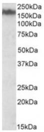 AP09628PU-N - Neurofilament  M (160 kD)