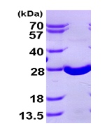 AR09412PU-L - Superoxide dismutase 2 / SOD2