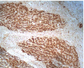 AP05261PU-N - SPARC / Osteonectin