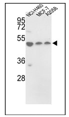 AP17628PU-N - PDIA6 / P5